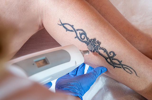 All You Need to Know About the Best Tattoo Removal Cream
